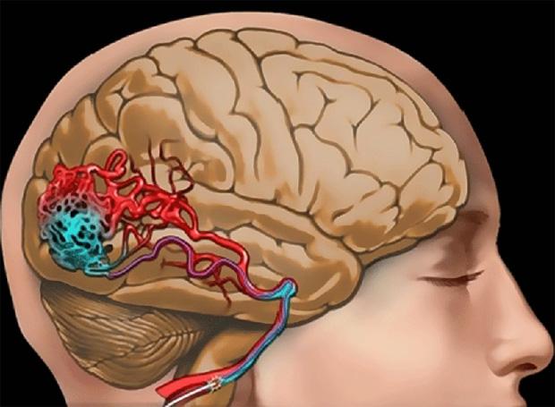 Церебральная ангиодистония с венозной дисфункцией